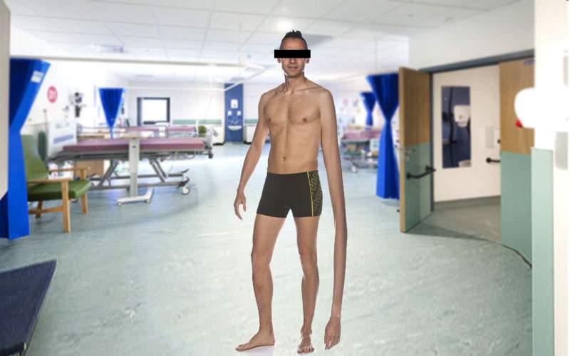 Un român are o mână mai lungă cu un metru, după un accident de stretching