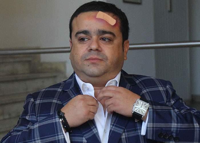 Tragedie! Adi Minune a ajuns la spital, după ce s-a lovit cu fruntea de gresie când a strănutat