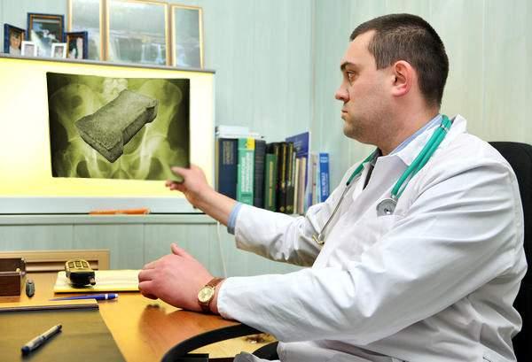 Bărbat care a locuit toată viaţa în Sectorul 3, diagnosticat cu beton la rinichi