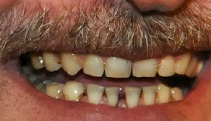 S-a aflat de ce românii nu au dinţi. Pentru că ani de zile li s-a dat rest în caramele la chioşc