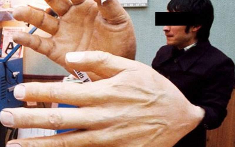 Un român şi-a făcut mărire de mână ca să poate ţine o şaorma mare de la Socului