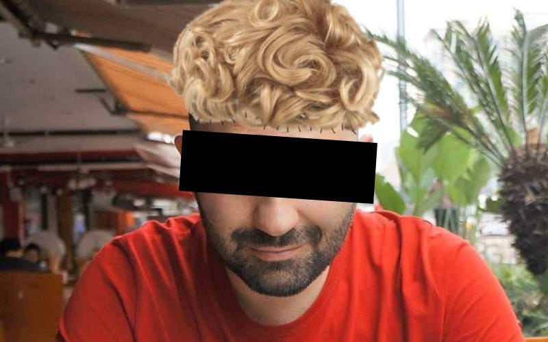 Un român a inventat implantul de păr low-cost! Şi-a cusut peruca de cap