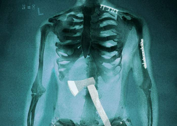 Scandalos! Un chirurg din Vaslui a uitat într-un pacient toporul cu care l-a operat