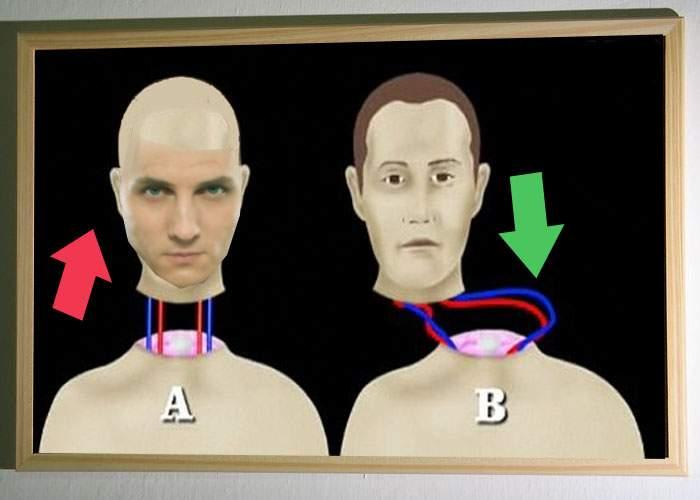 S-a săturat! Mihai Trăistariu îşi transplantează un cap cu păr