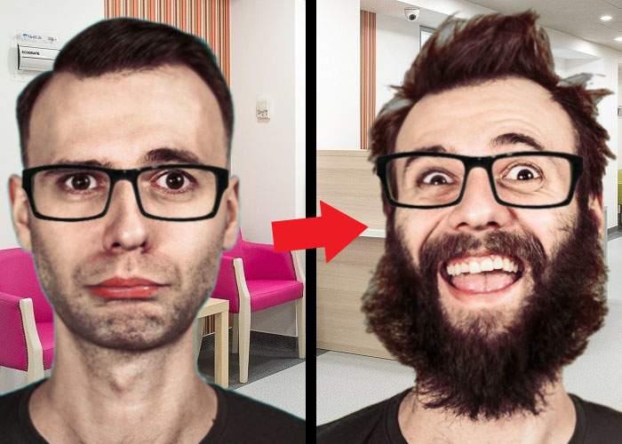 Încă o premieră în România. Unui hipster i-a fost transplantată o barbă, după ce se bărbierise accidental
